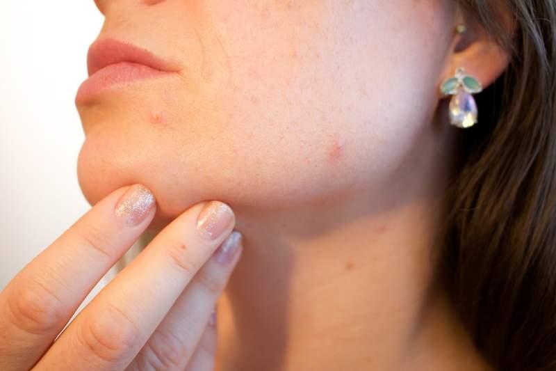 come evitare acne giovanili in viso