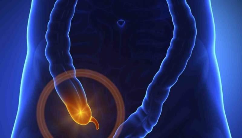 appendicite cibi da evitare