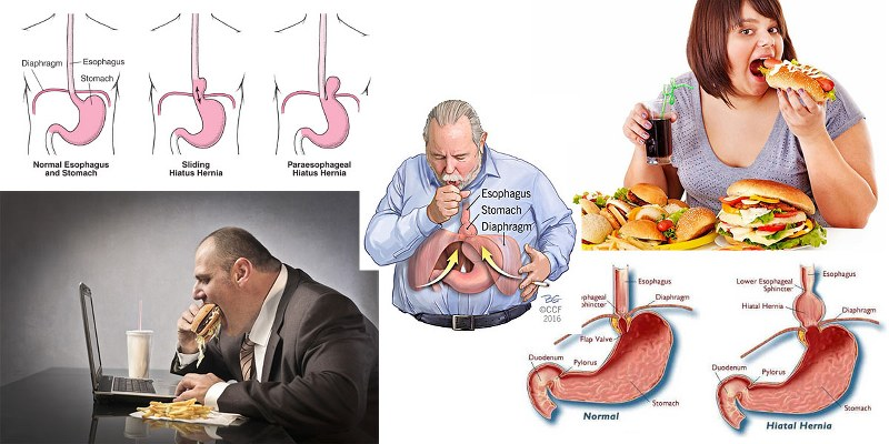 ernia iatale alimenti da evitare